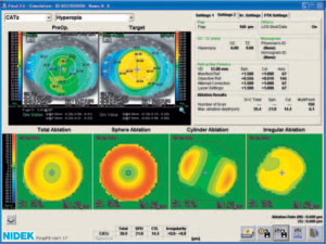 ablation-scan